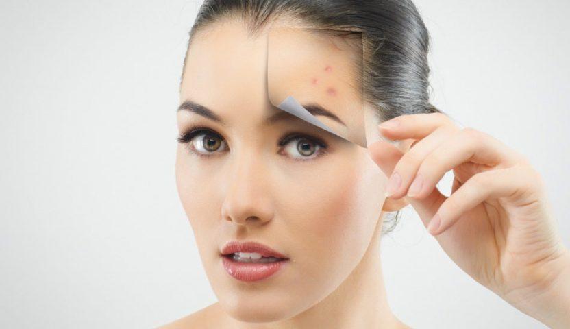 Cum sa scapati usor de acnee ?