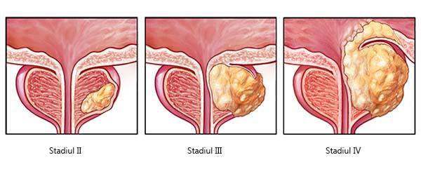 Ce este cancerul de prostata?